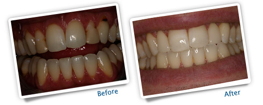 Success Stories - Bleaching Veneers and Crowns - Before and After Image
