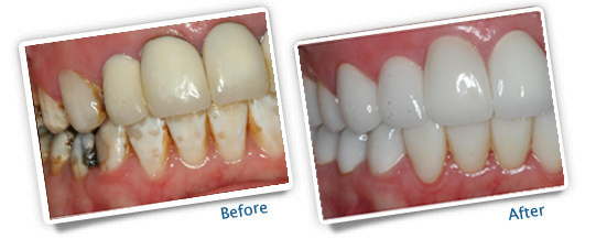 Success Stories - Plains Dental - Before and After Photos