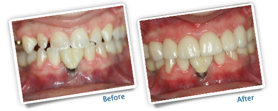 Success Stories - Great Plains Dental Before & After Photo